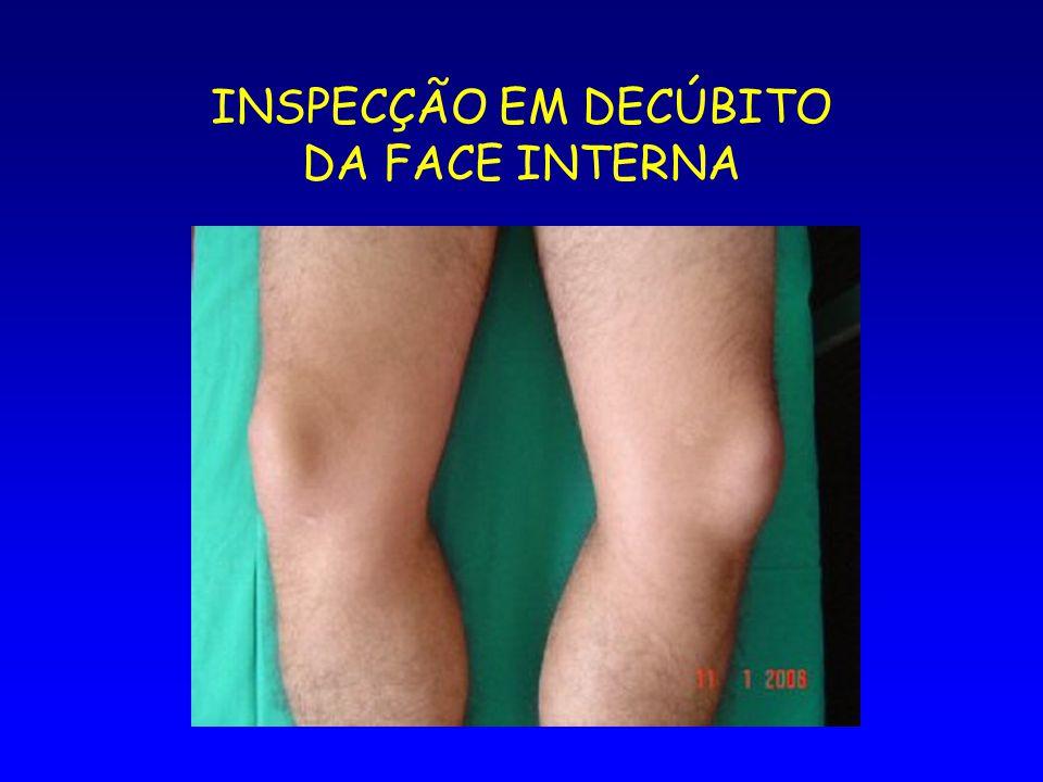 INSPECÇÃO EM DECÚBITO DA FACE INTERNA
