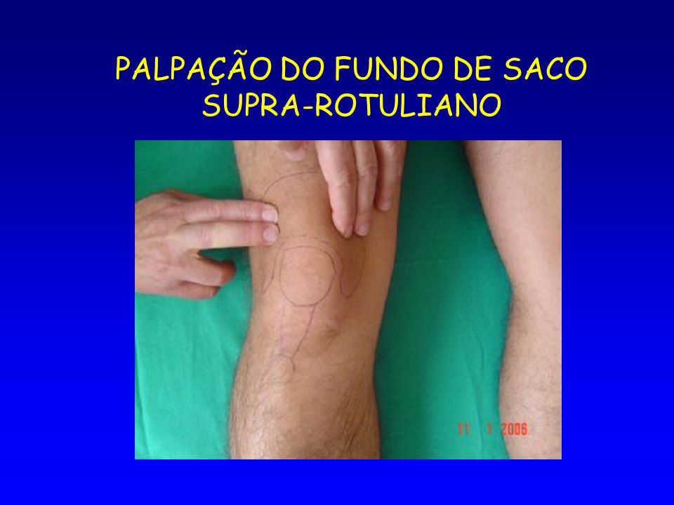 PALPAÇÃO DO FUNDO DE SACO SUPRA-ROTULIANO