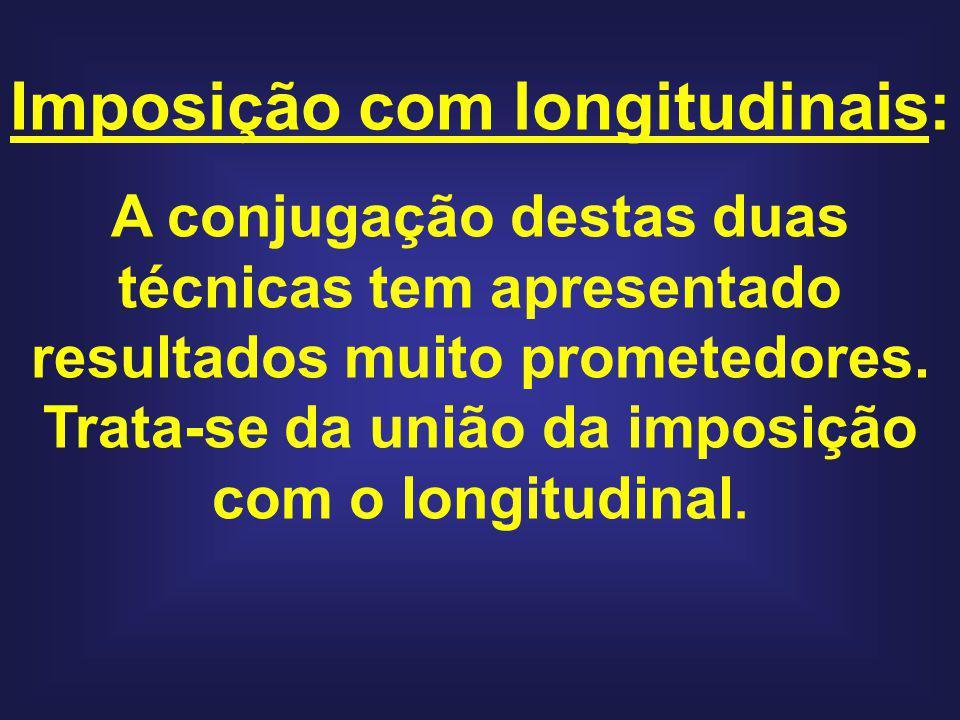 Imposição com longitudinais: