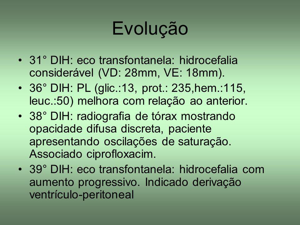 Evolução 31° DIH: eco transfontanela: hidrocefalia considerável (VD: 28mm, VE: 18mm).