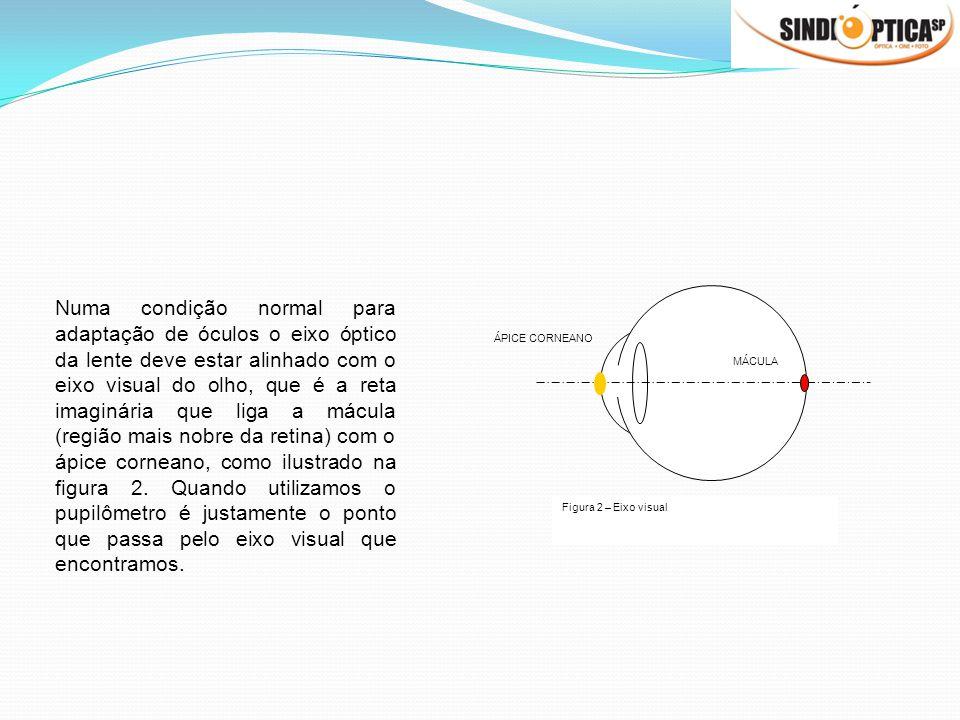 Numa condição normal para adaptação de óculos o eixo óptico da lente deve estar alinhado com o eixo visual do olho, que é a reta imaginária que liga a mácula (região mais nobre da retina) com o ápice corneano, como ilustrado na figura 2. Quando utilizamos o pupilômetro é justamente o ponto que passa pelo eixo visual que encontramos.
