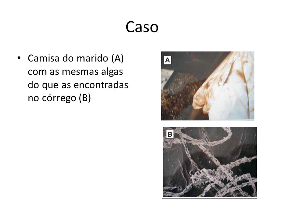 Caso Camisa do marido (A) com as mesmas algas do que as encontradas no córrego (B)