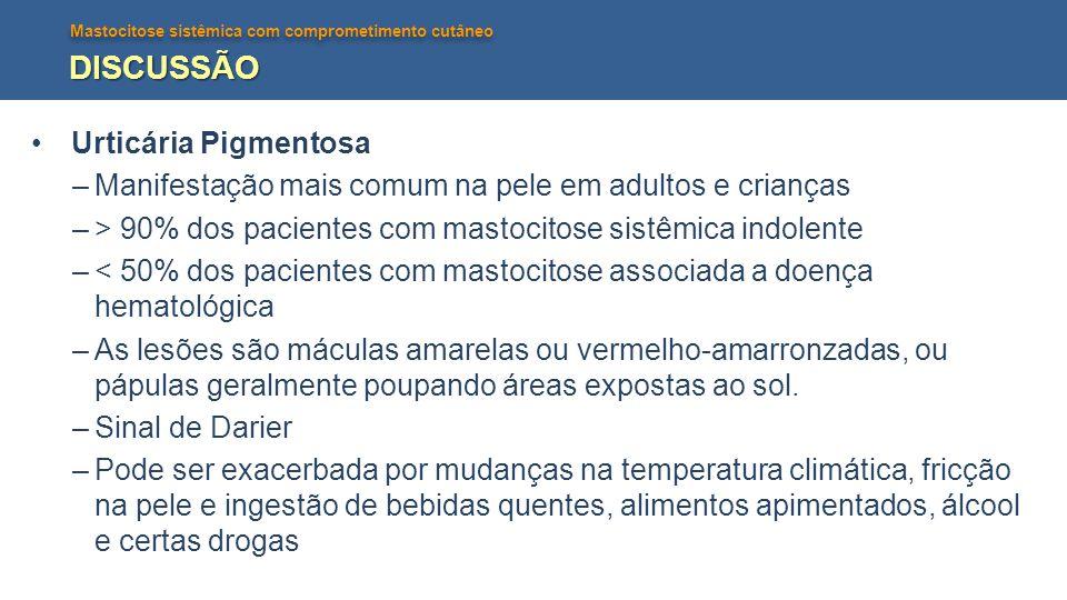 DISCUSSÃO Urticária Pigmentosa