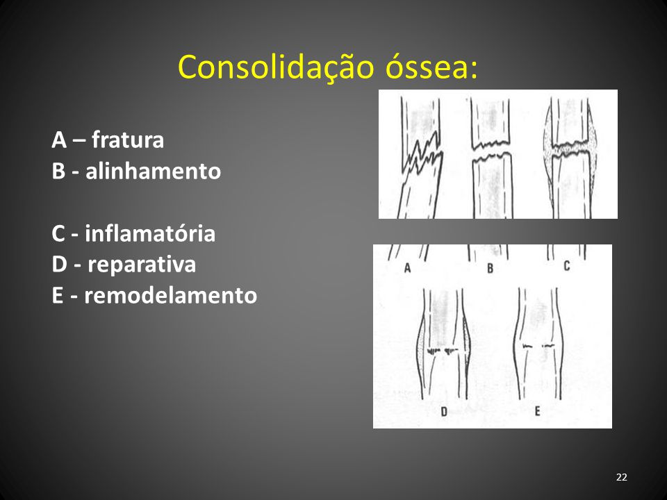 Consolidação óssea: A – fratura B - alinhamento C - inflamatória