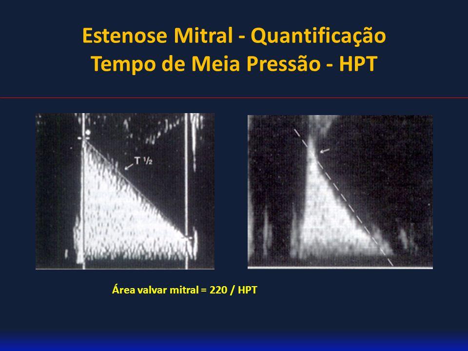 Estenose Mitral - Quantificação Tempo de Meia Pressão - HPT