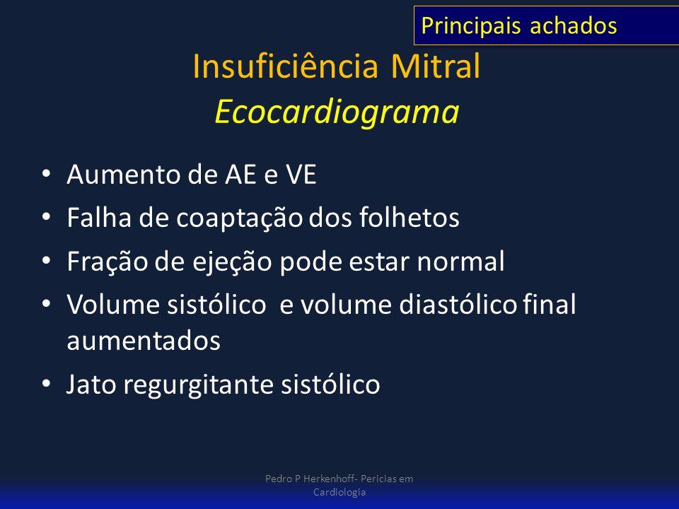 Insuficiência Mitral Ecocardiograma