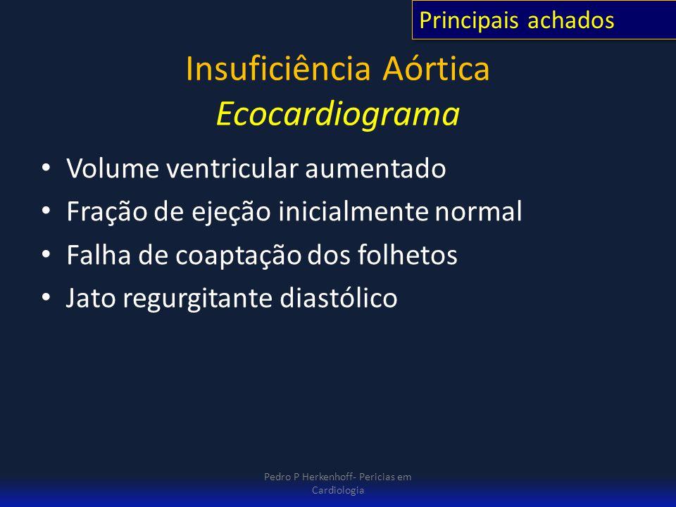 Insuficiência Aórtica Ecocardiograma