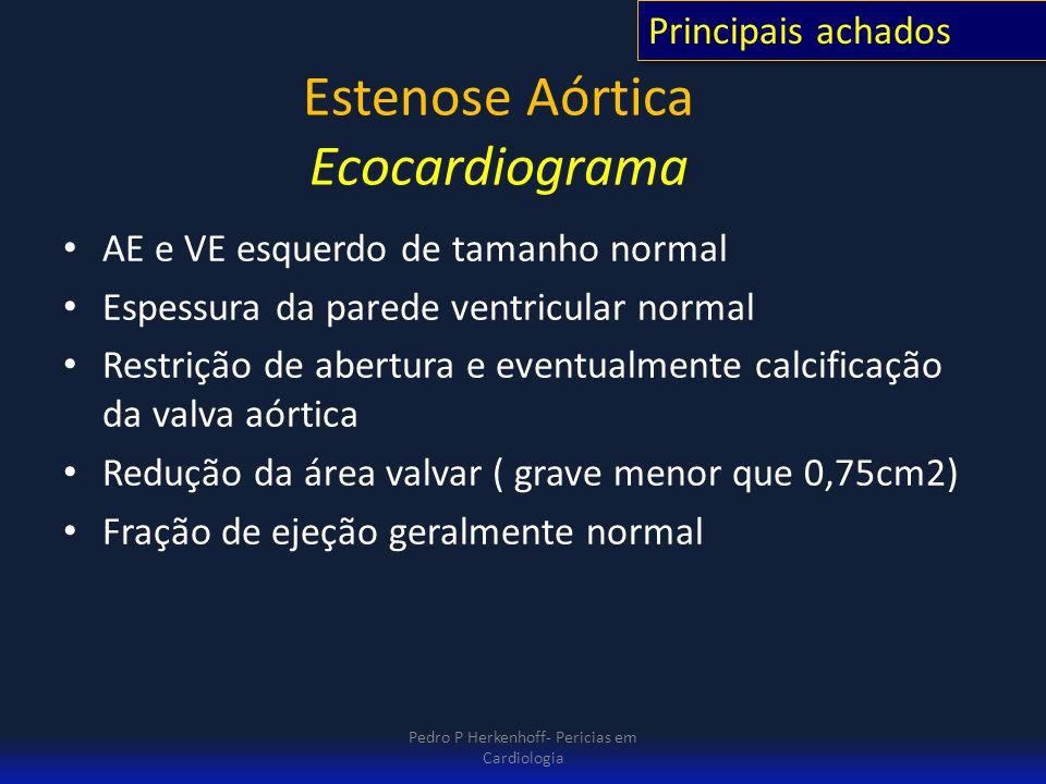 Estenose Aórtica Ecocardiograma
