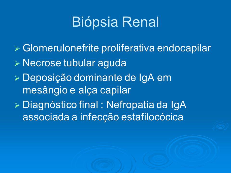Biópsia Renal Glomerulonefrite proliferativa endocapilar