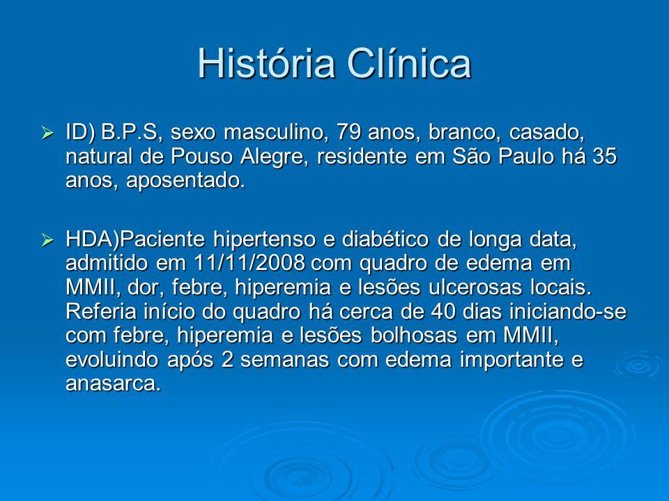 História Clínica ID) B.P.S, sexo masculino, 79 anos, branco, casado, natural de Pouso Alegre, residente em São Paulo há 35 anos, aposentado.