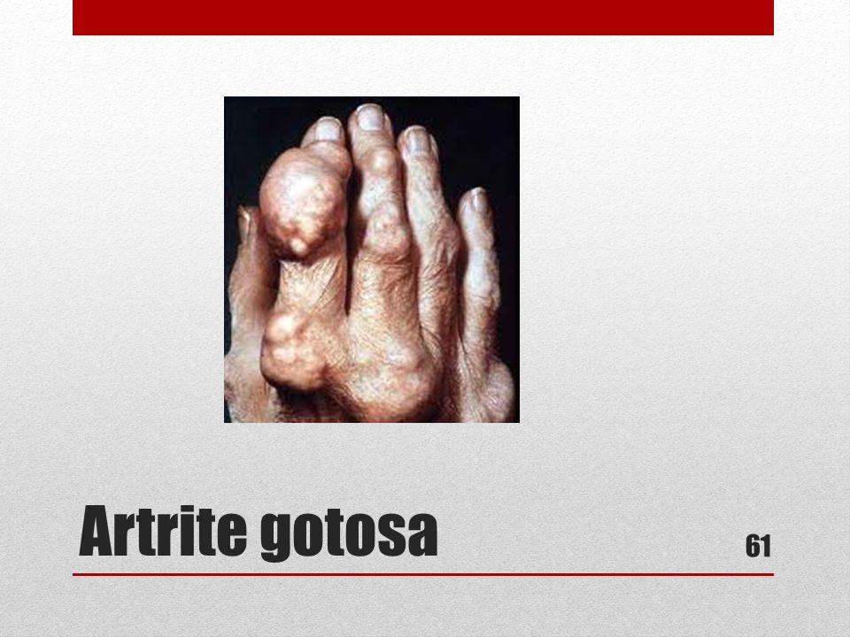 Artrite gotosa