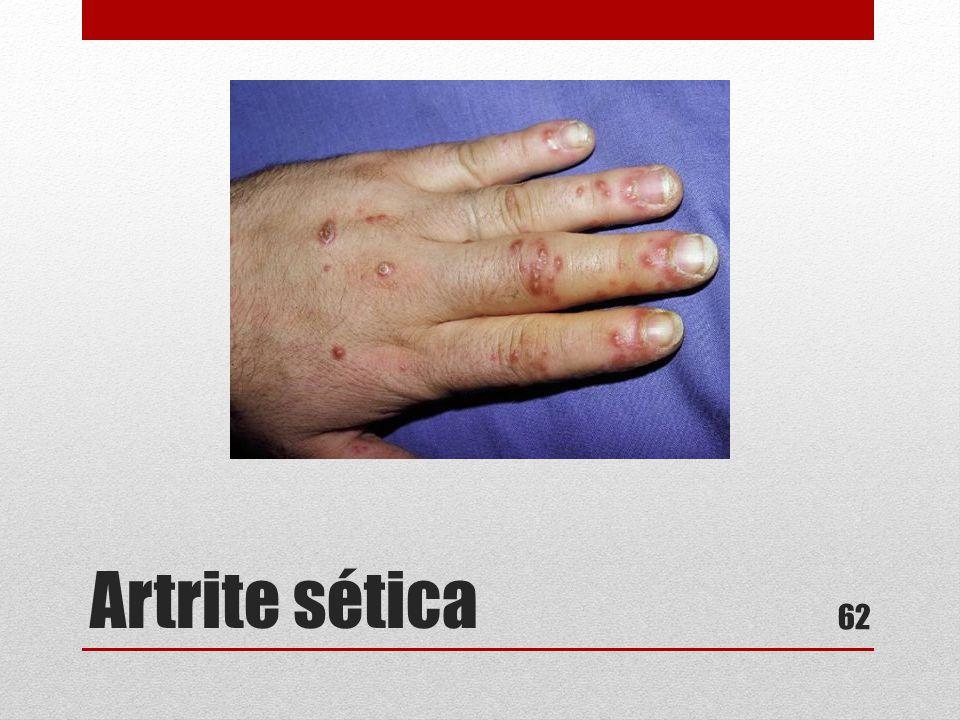 Artrite sética