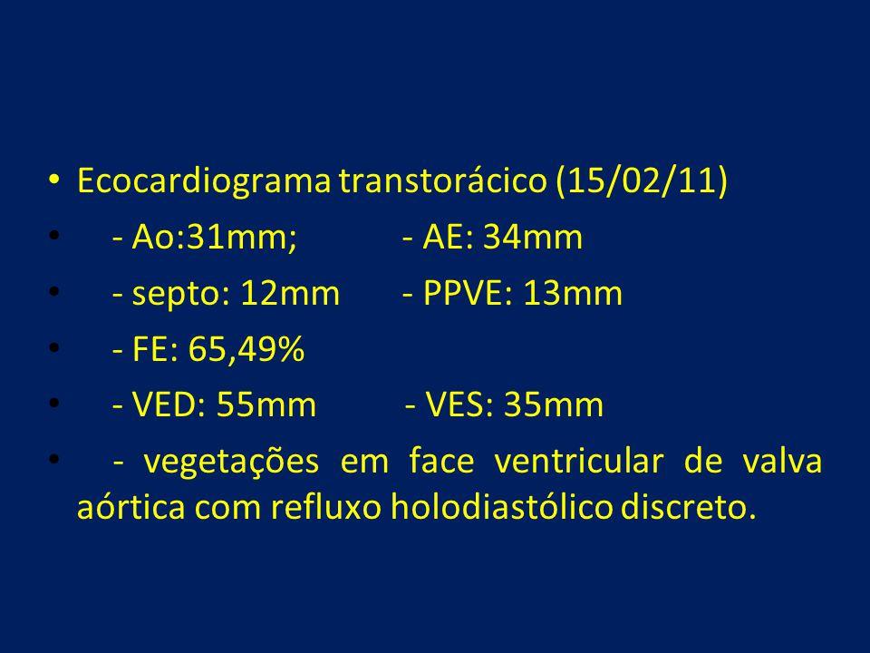Ecocardiograma transtorácico (15/02/11)