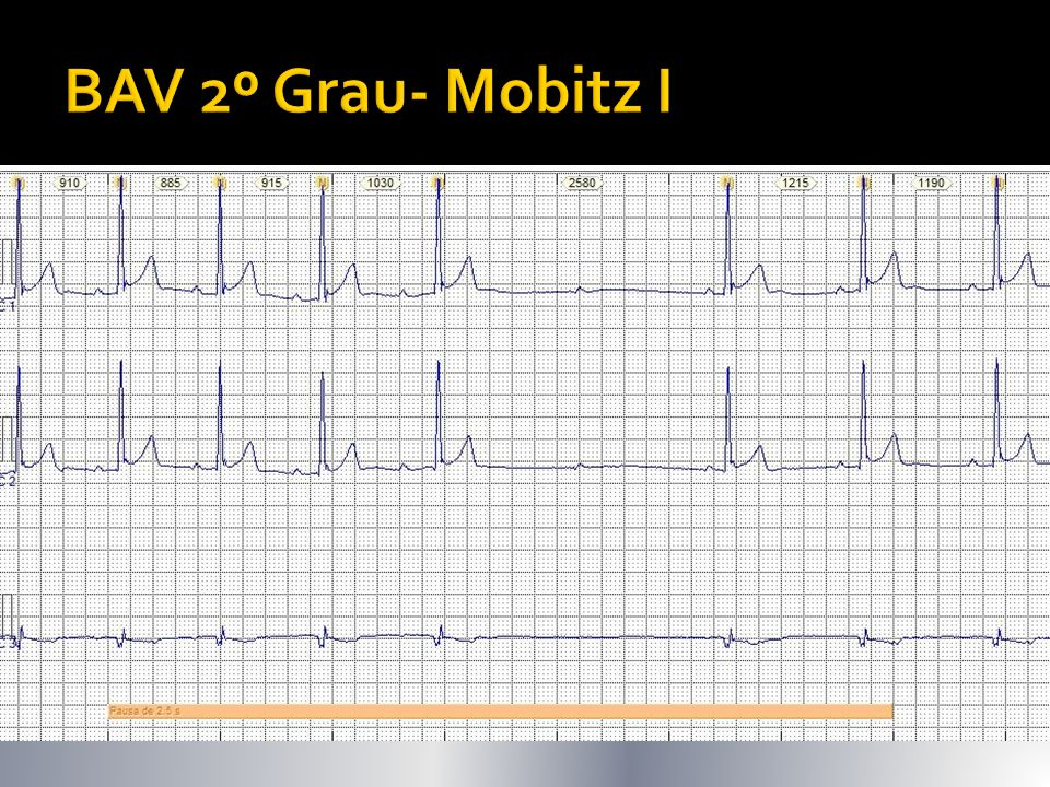 BAV 2º Grau- Mobitz I Bloqueio de onda P após aumento progressivo intervalo PR ( + RR progressivamente menor até bloqueio: fenômeno de Wenckebach)