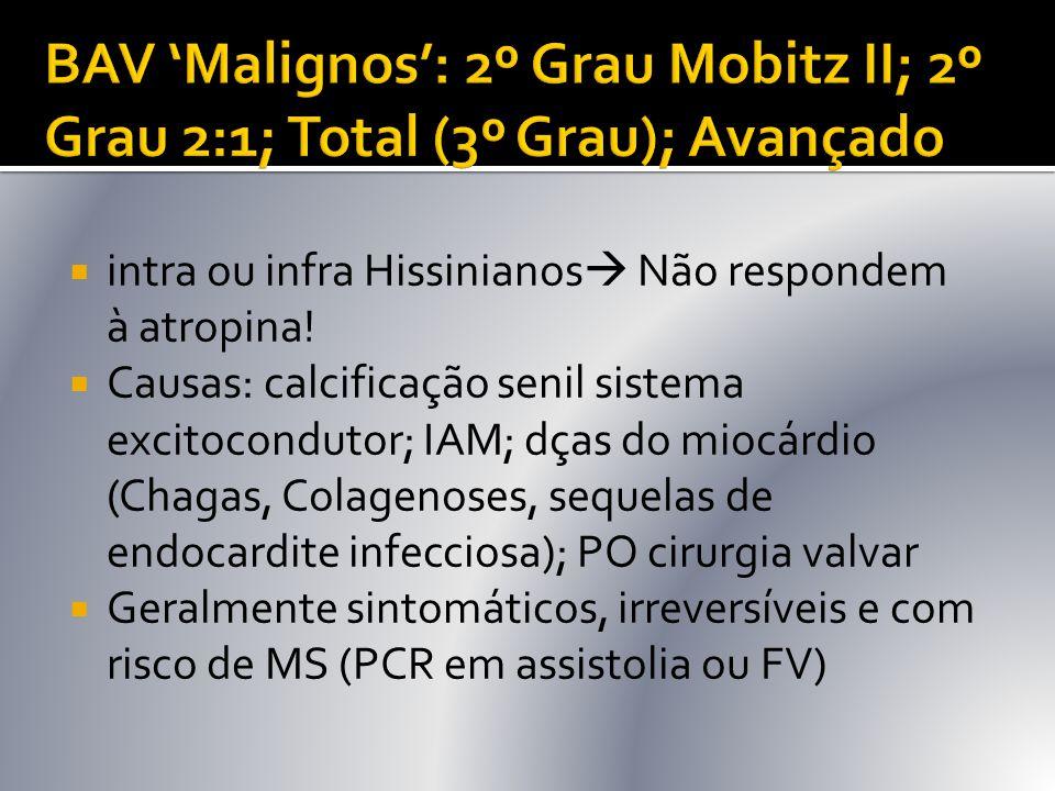 BAV 'Malignos': 2º Grau Mobitz II; 2º Grau 2:1; Total (3º Grau); Avançado