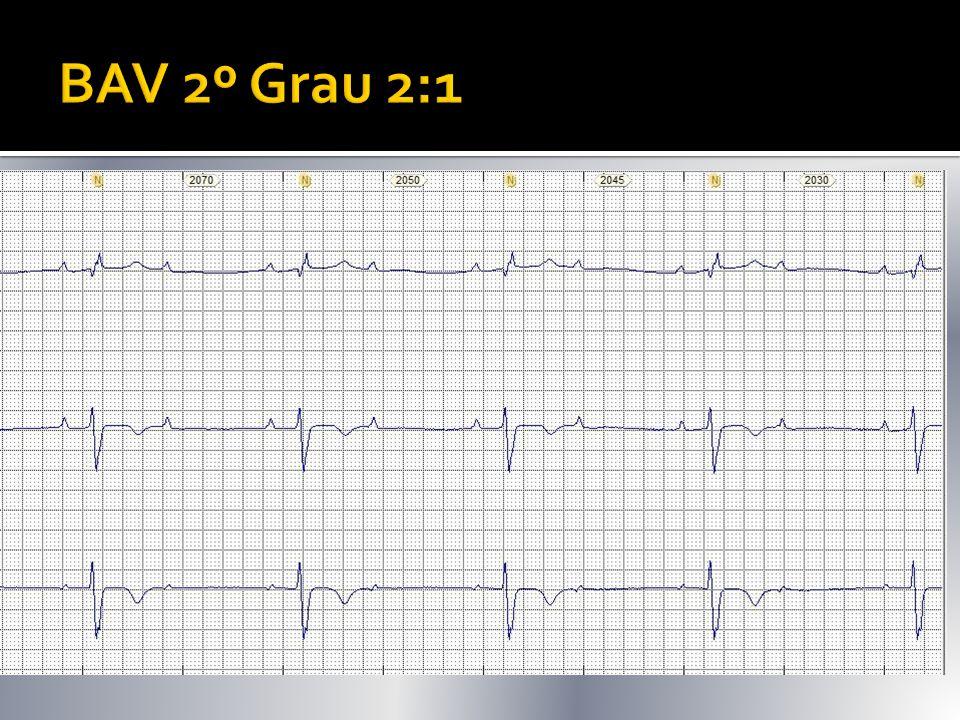 BAV 2º Grau 2:1 A cada 2 P 1 é bloqueada 1 QRS: 2 P