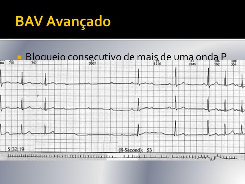 BAV Avançado Bloqueio consecutivo de mais de uma onda P P/QRS 3:1, 4:1