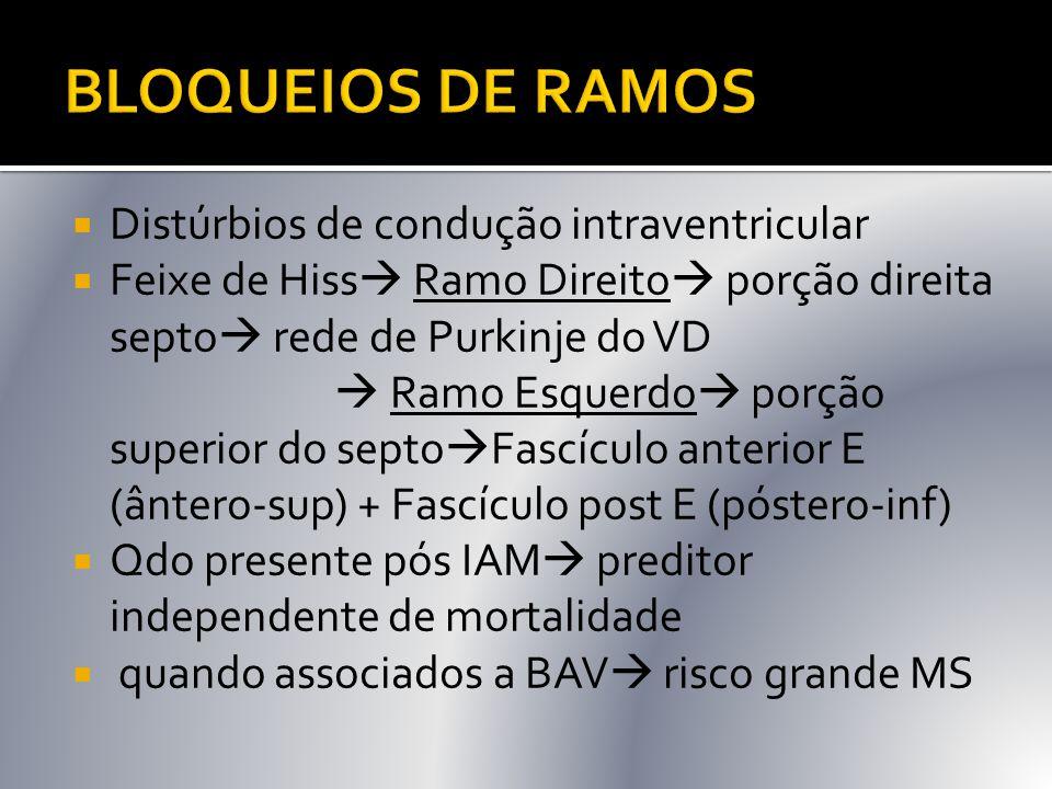 BLOQUEIOS DE RAMOS Distúrbios de condução intraventricular