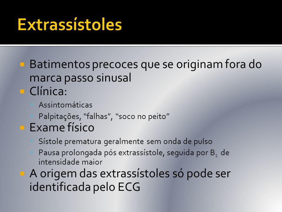 Extrassístoles Batimentos precoces que se originam fora do marca passo sinusal. Clínica: Assintomáticas.