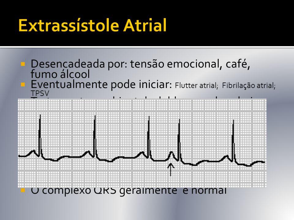 Extrassístole Atrial Desencadeada por: tensão emocional, café, fumo álcool. Eventualmente pode iniciar: Flutter atrial; Fibrilação atrial; TPSV.