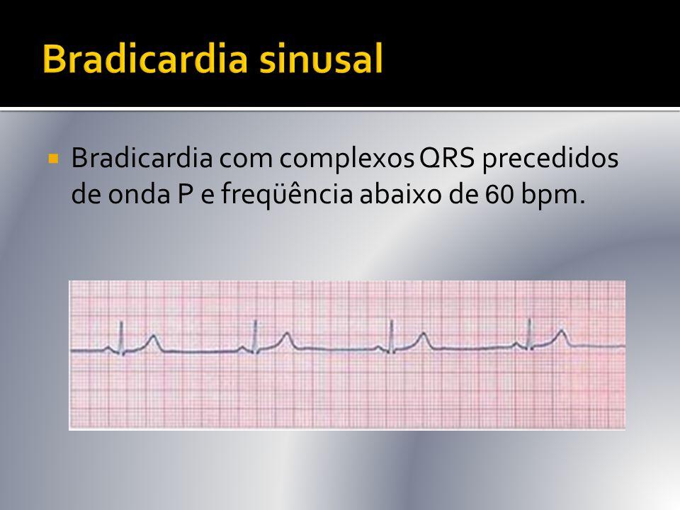 Bradicardia sinusal Bradicardia com complexos QRS precedidos de onda P e freqüência abaixo de 60 bpm.
