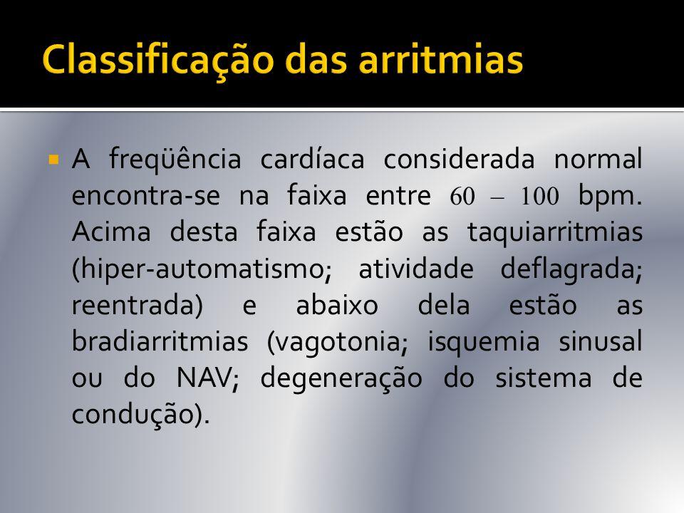 Classificação das arritmias