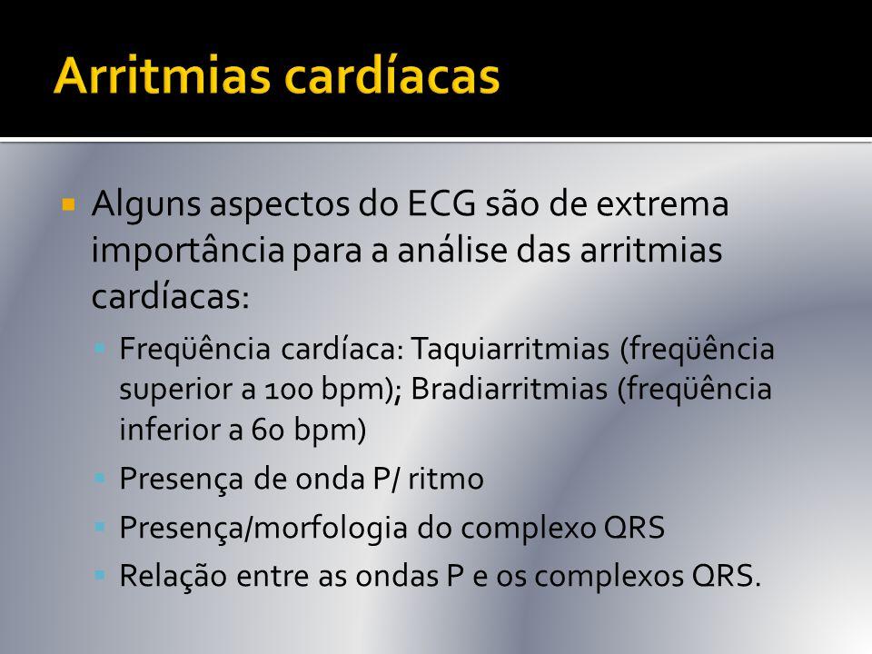 Arritmias cardíacas Alguns aspectos do ECG são de extrema importância para a análise das arritmias cardíacas: