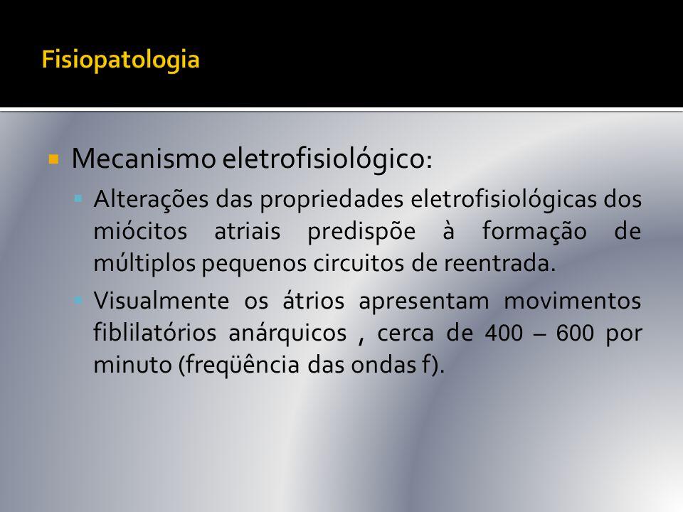 Mecanismo eletrofisiológico: