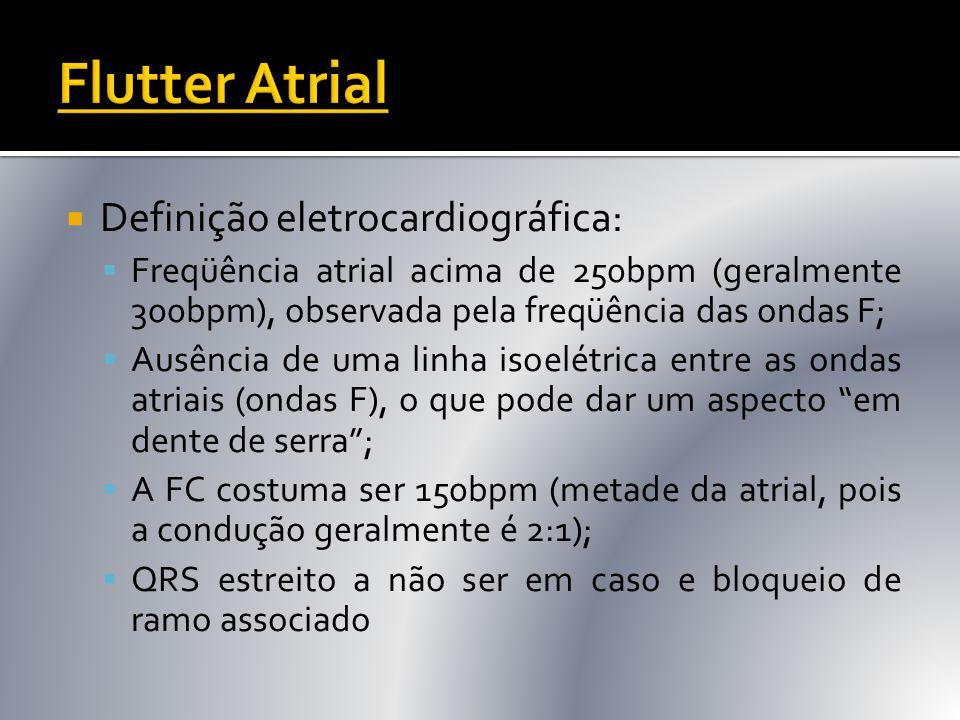 Flutter Atrial Definição eletrocardiográfica: