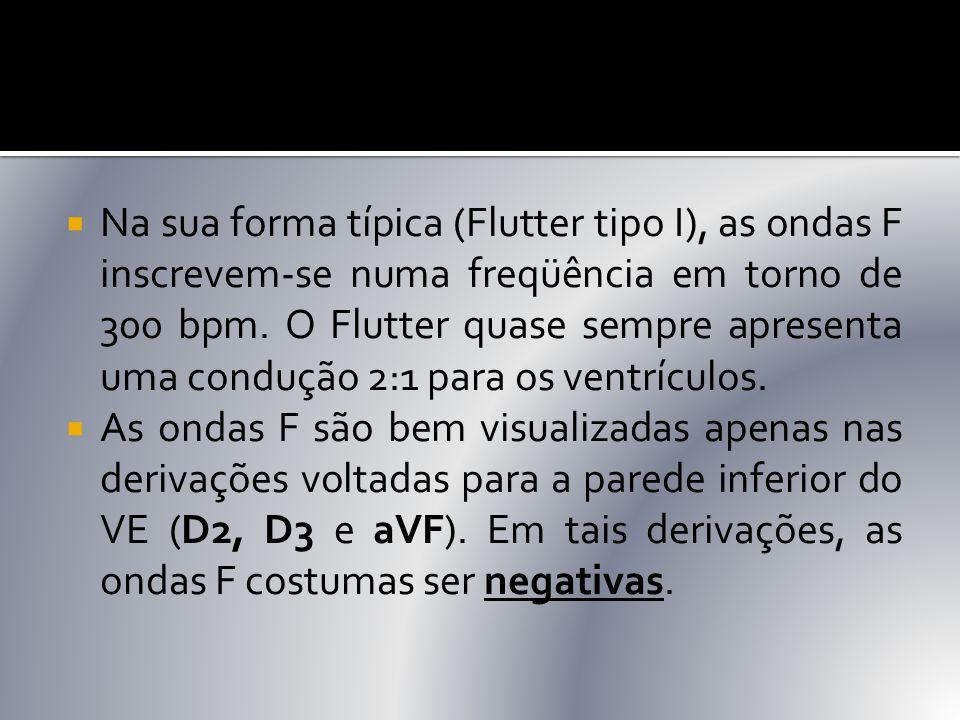 Na sua forma típica (Flutter tipo I), as ondas F inscrevem-se numa freqüência em torno de 300 bpm. O Flutter quase sempre apresenta uma condução 2:1 para os ventrículos.