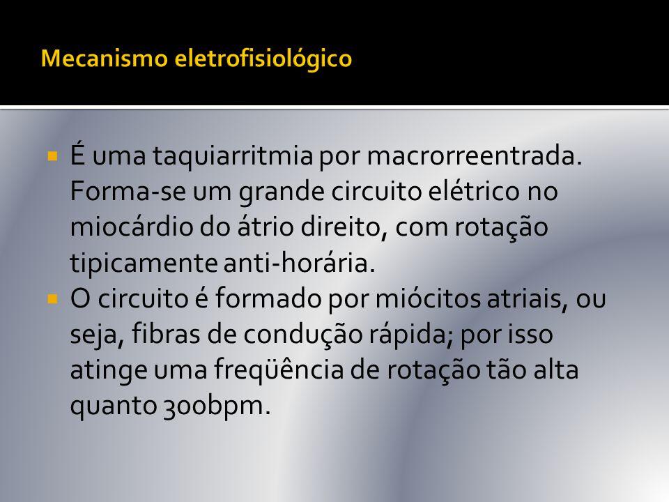 Mecanismo eletrofisiológico