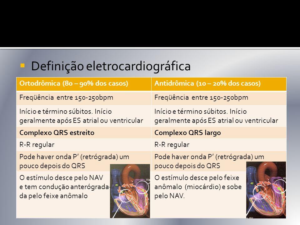 Definição eletrocardiográfica