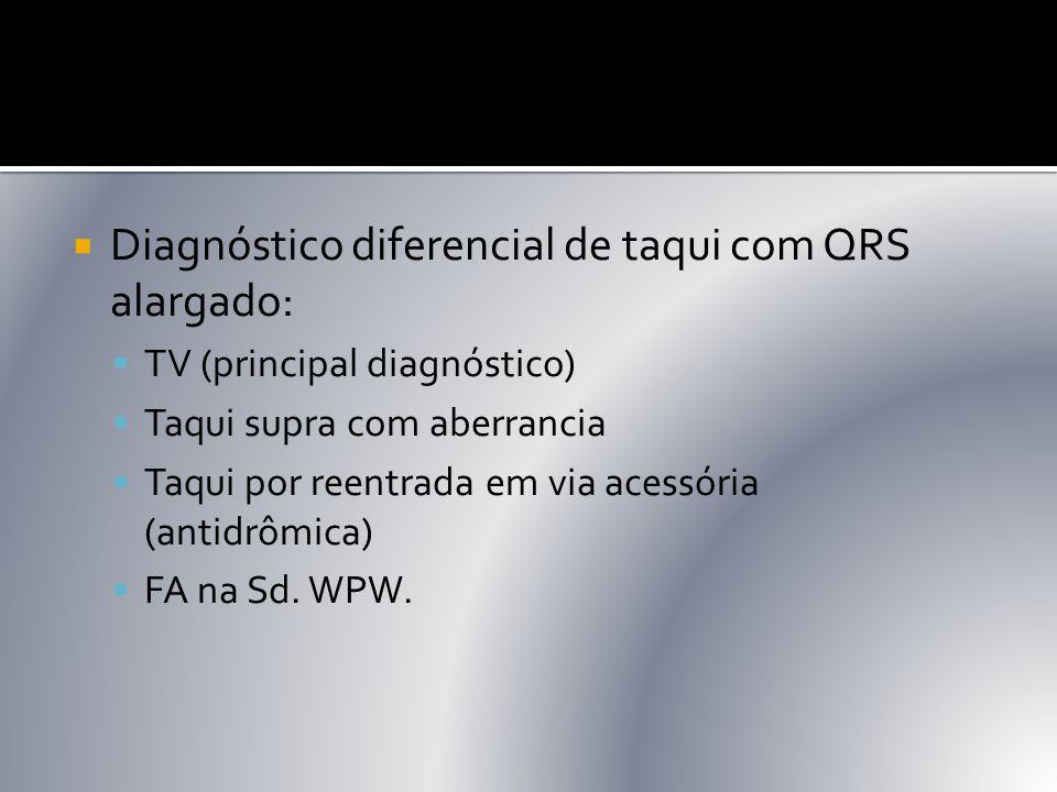 Diagnóstico diferencial de taqui com QRS alargado: