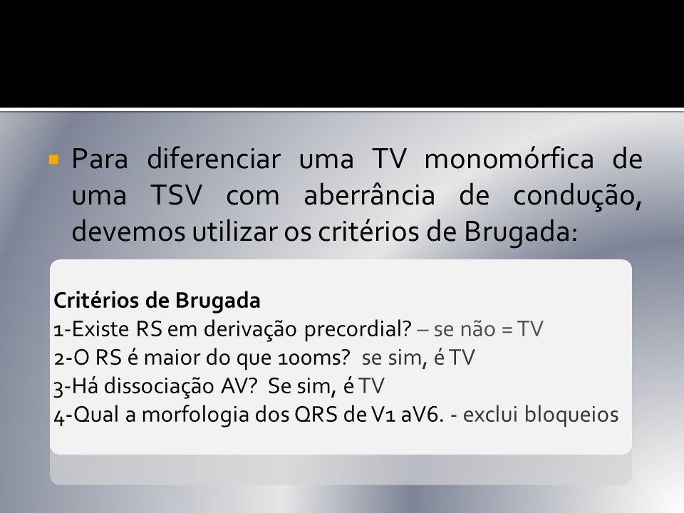 Para diferenciar uma TV monomórfica de uma TSV com aberrância de condução, devemos utilizar os critérios de Brugada: