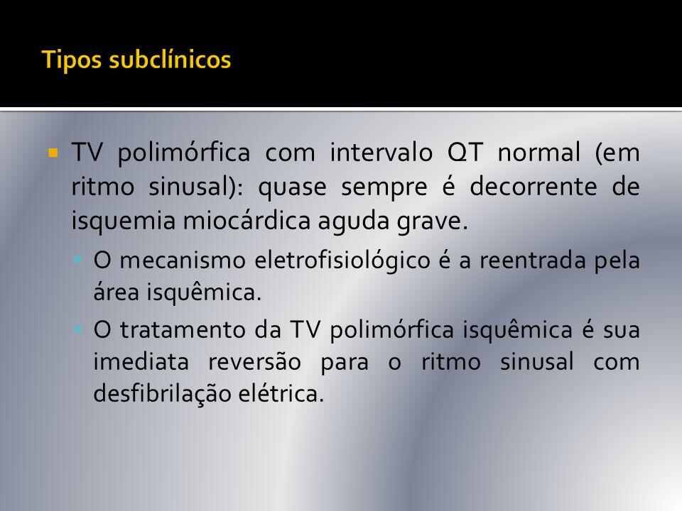 Tipos subclínicos TV polimórfica com intervalo QT normal (em ritmo sinusal): quase sempre é decorrente de isquemia miocárdica aguda grave.