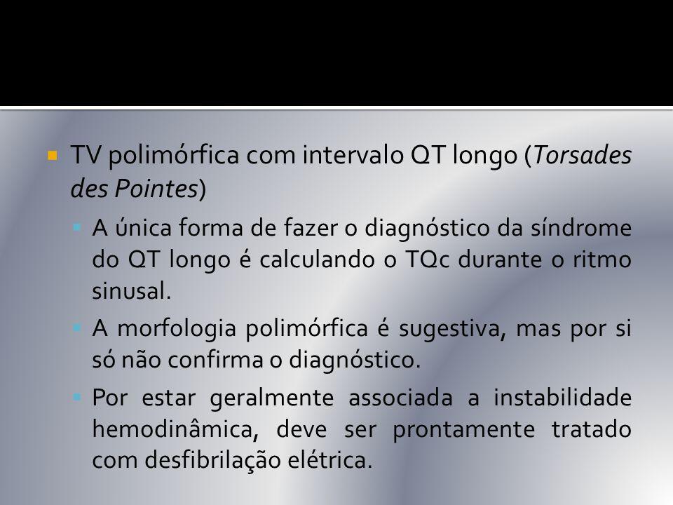 TV polimórfica com intervalo QT longo (Torsades des Pointes)