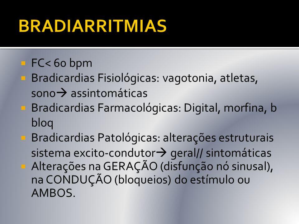 BRADIARRITMIAS FC< 60 bpm