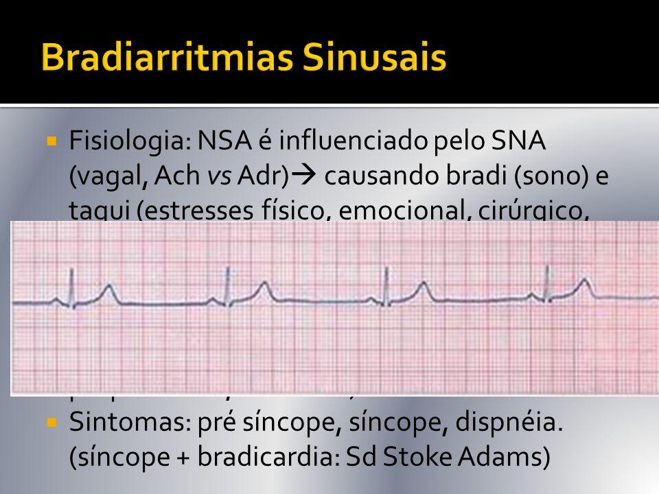 Bradiarritmias Sinusais