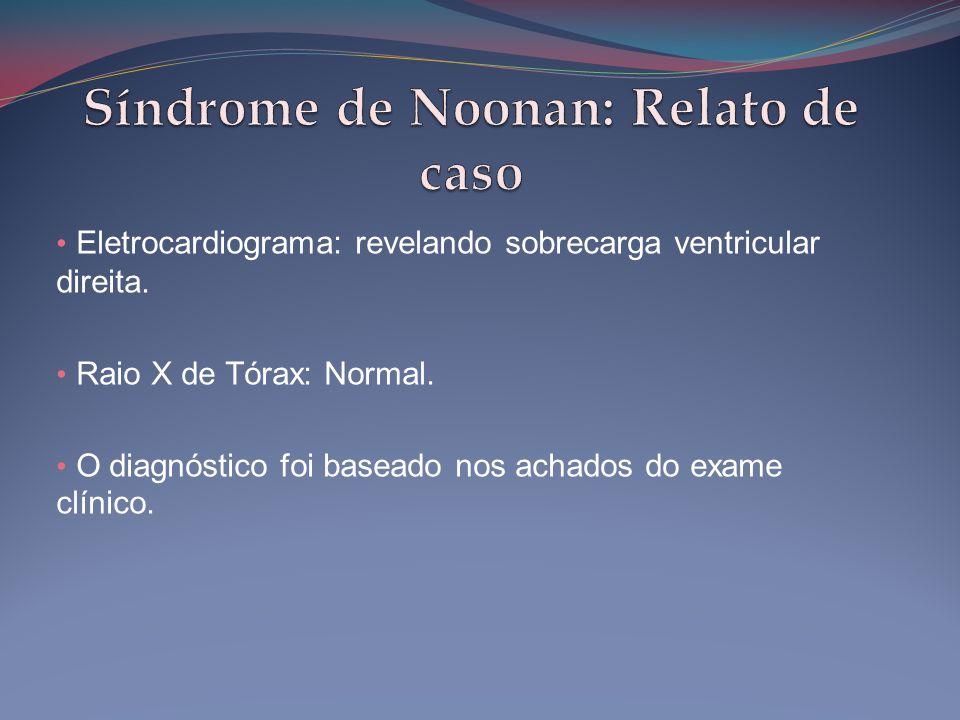 Síndrome de Noonan: Relato de caso