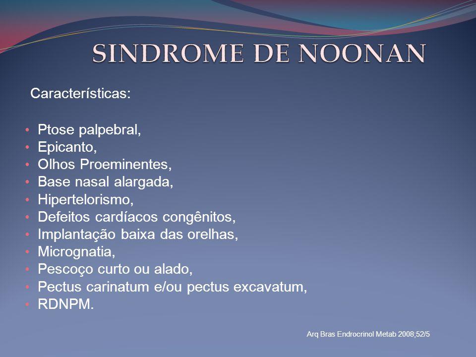 SINDROME DE NOONAN Características: Ptose palpebral, Epicanto,