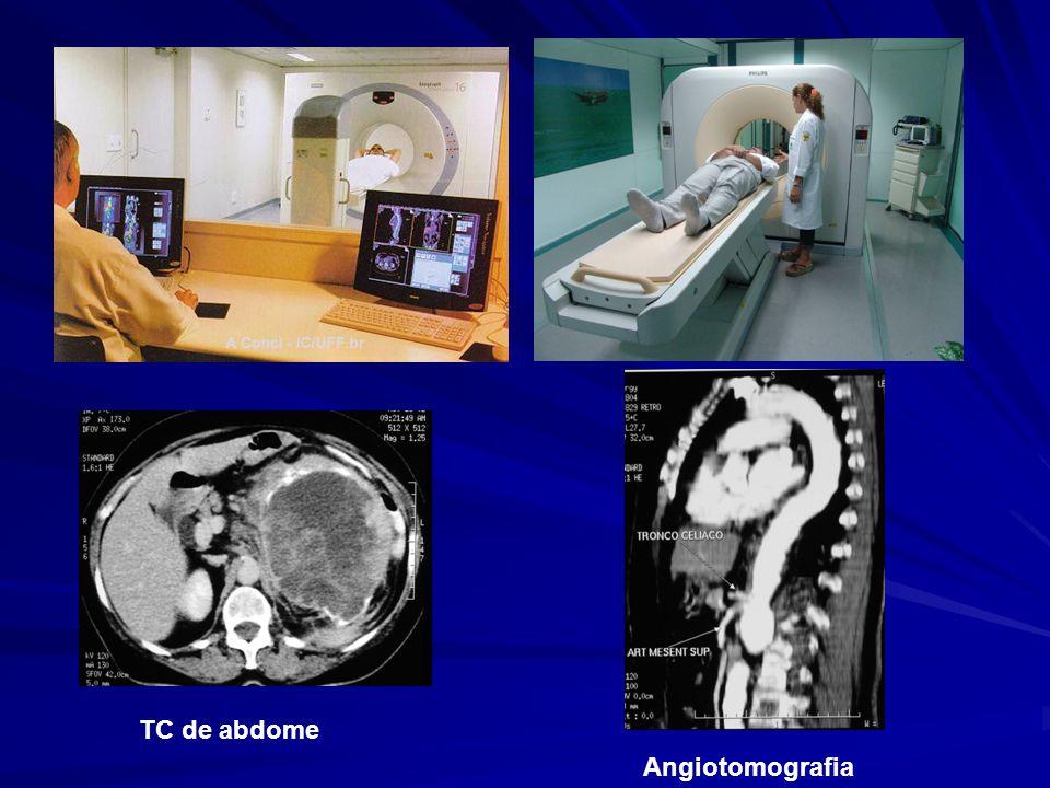 TC de abdome Angiotomografia