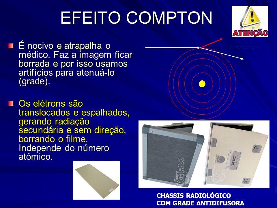 EFEITO COMPTON É nocivo e atrapalha o médico. Faz a imagem ficar borrada e por isso usamos artifícios para atenuá-lo (grade).