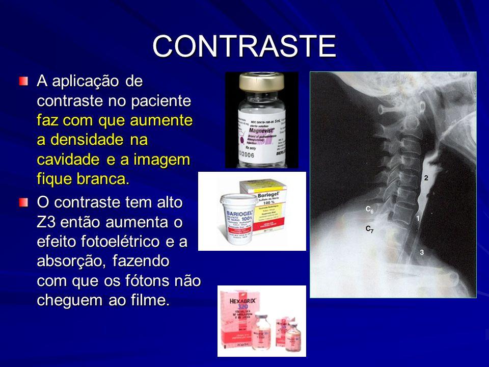 CONTRASTE A aplicação de contraste no paciente faz com que aumente a densidade na cavidade e a imagem fique branca.