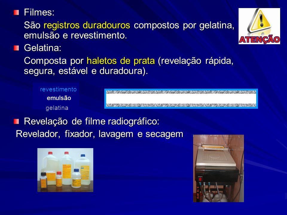 Revelação de filme radiográfico: Revelador, fixador, lavagem e secagem