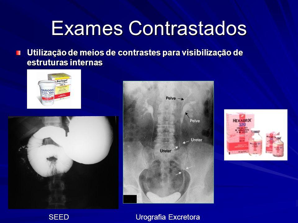 Exames Contrastados Utilização de meios de contrastes para visibilização de estruturas internas. SEED.