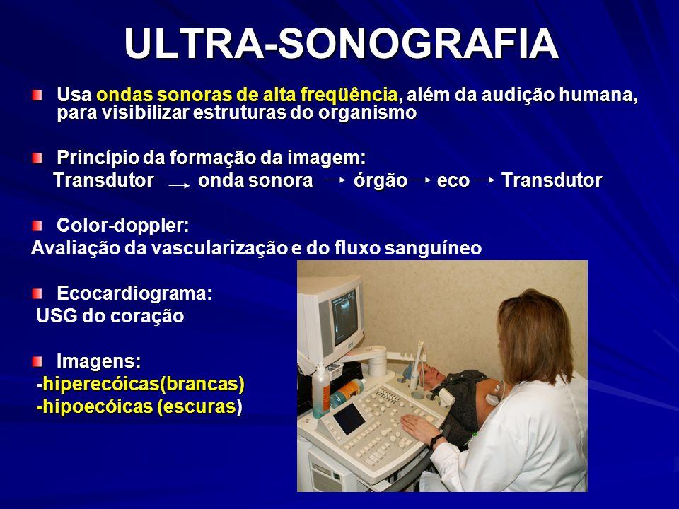 ULTRA-SONOGRAFIA Usa ondas sonoras de alta freqüência, além da audição humana, para visibilizar estruturas do organismo.