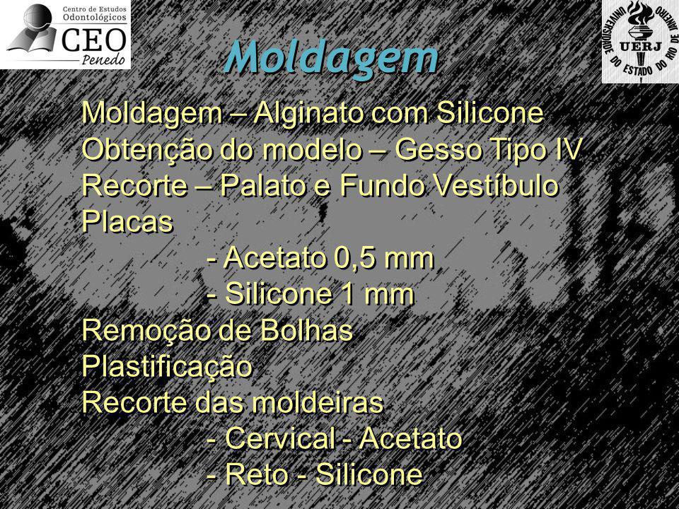 Moldagem Moldagem – Alginato com Silicone