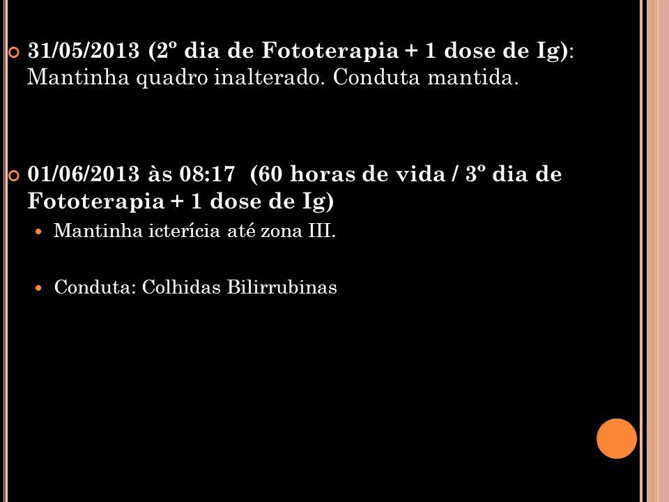 31/05/2013 (2º dia de Fototerapia + 1 dose de Ig): Mantinha quadro inalterado. Conduta mantida.