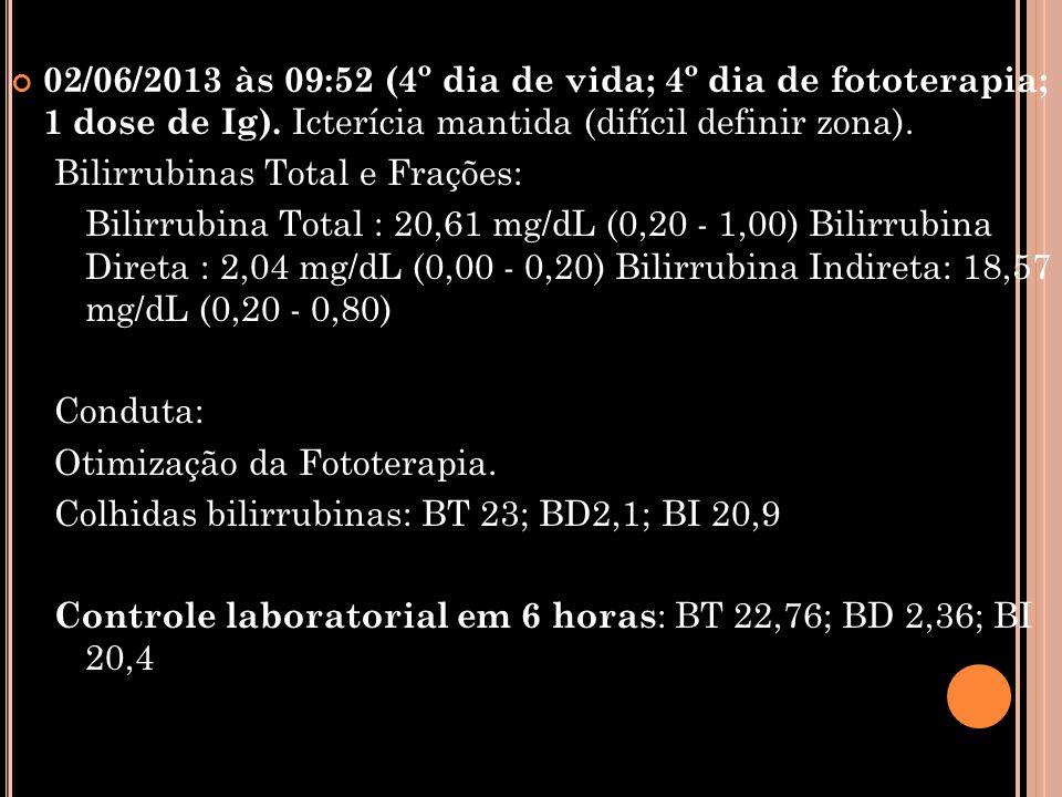 02/06/2013 às 09:52 (4º dia de vida; 4º dia de fototerapia; 1 dose de Ig). Icterícia mantida (difícil definir zona).