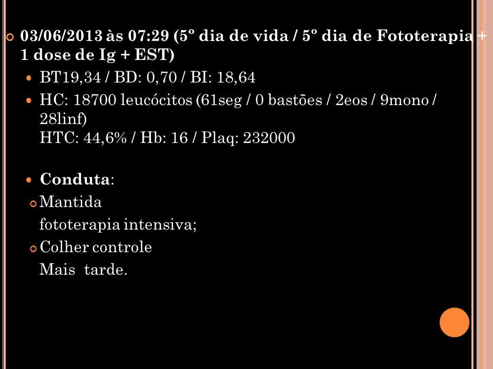 03/06/2013 às 07:29 (5º dia de vida / 5º dia de Fototerapia + 1 dose de Ig + EST)